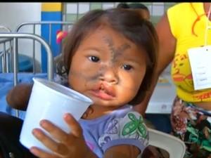 Operação Sorriso, em Santarém (Foto: Reprodução/TV Tapajós)