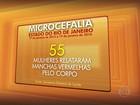 Casos de microcefalia avançam no RJ, segundo a secretaria de Saúde