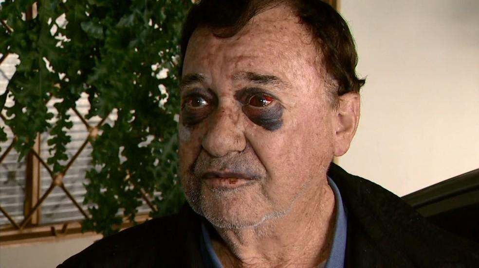 Taxisita Zequinha, de 73 anos, foi agredido por três pessoas, em Franca, SP (Foto: José Augusto Júnior / EPTV)