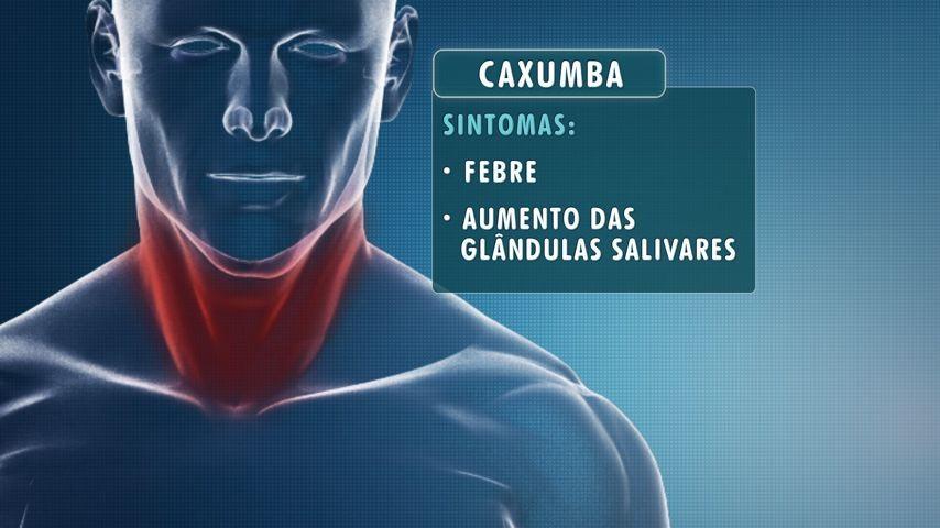 Sintomas da caxumba (Foto: Arte/TV Gazeta)