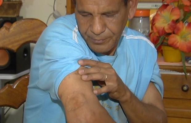 Kardec Sebastião dos Santos, vítima de contaminação por césio-137 em Goiás (Foto: Reprodução / TV Anhanguera)