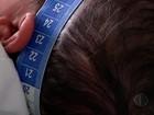PB tem notificações de microcefalia em 96 municípios, diz Saúde estadual