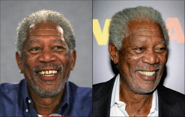 Olha só como o premiado ator Morgan Freeman ficou bem melhor depois que passou a ter um sorriso perfeito. (Foto: Getty Images)