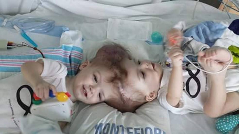 Gêmeos siameses Jadon e Anias McDonald passaram por uma cirurgia de separação em outubro (Foto: Reprodução/Facebook/Nicole McDonald)