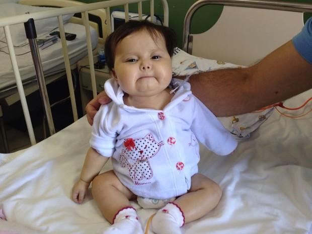 Sofia, bebê com doença rara, a síndrome de Berdon, de Sorocaba (Foto: Jéssica Pimentel/G1)