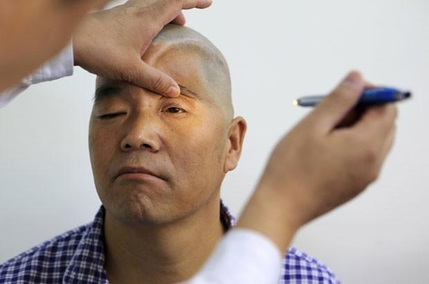 Médicos usaram uma impressora 3D para reconstruir o crânio de um paciente (Foto: China Daily/Reuters)