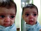 Após viajar para o AM, bebê com risco de ficar cego ainda espera por cirurgia