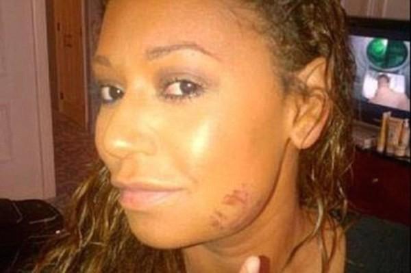 A cantora Mel B com um machucado decorrente de um ato de agressão de seu ex (Foto: Reprodução)