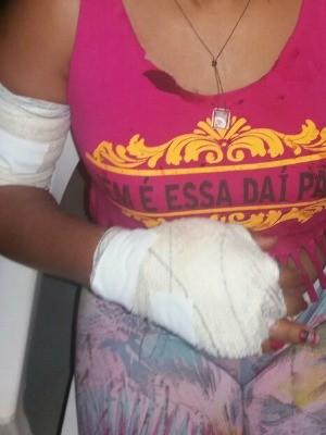 Mulher teve vários ferimentos pelo corpo (Foto: Arquivo pessoal)