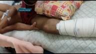 Médicos do Hospital de Ceilândia colocaram prótese errada em jovem