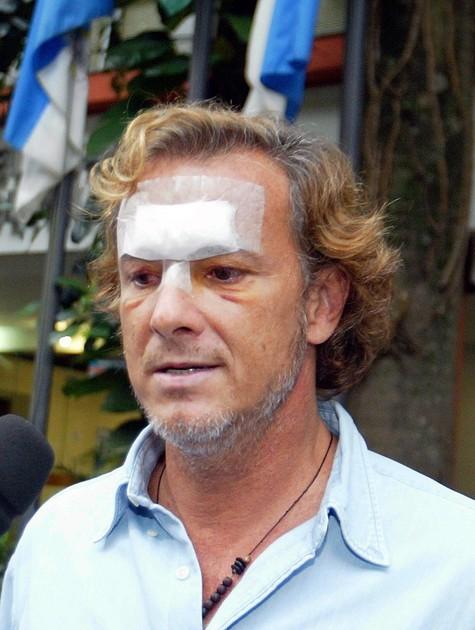 Marcello Novaes depois da agressão  (Foto: Fabiano Rocha)