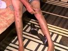 """Jovem é torturada durante 2 anos pelo namorado: """"Pedi a Deus para morrer"""""""