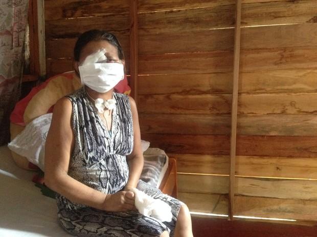 Em Macapá, dona de casa perdeu parte do rosto por causa de câncer (Foto: Abinoan Santiago/G1)