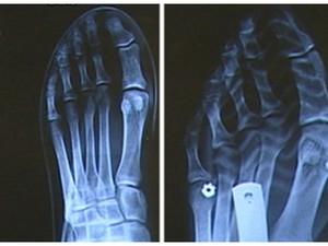 Exames mostram efeitos do salto no pé em Mogi das Cruzes (Foto: Reprodução/TV Diário)