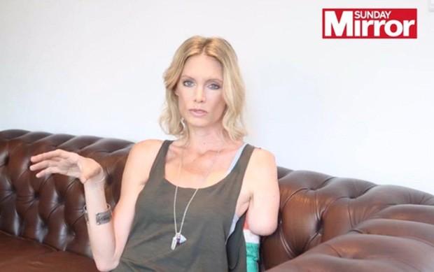 Olivia Jackson perdeu parte do braço como dublê em 'Resident Evil' (Foto: Reprodução)