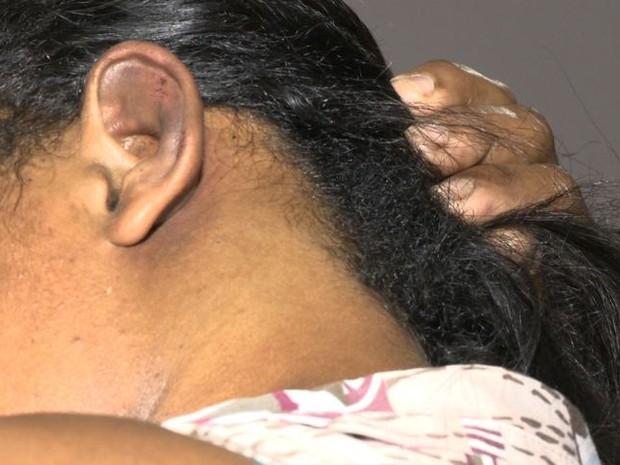 Zeladora mostra marcas de agressão no corpo (Foto: Reprodução/ TV Gazeta)
