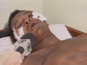 Wagner, sobrevivente da chacina, fez o retrato falado de um dos suspeitos ainda no hospital, onde também concedeu entrevista (Foto: reprodução / TV Globo)