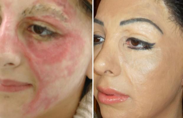 """Basma antes e depois da """"camuflagem"""" de cicatrizes. Ela desenvolveu uma pigmentação bastante próxima da natural. Hoje, oferece o tratamento em suas clínicas no Canadá e Estados Unidos (Foto: Arquivo pessoal)"""