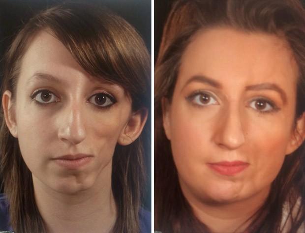 Britânica Yasmin Butler, de 22 anos, passou por várias cirurgias para corrigir deformidade que fazia parecer que metade de seu rosto tinha 'derretido' (Foto:  SWNS/The Grosby Group )