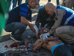 Torcedor ferido briga Coritiba x Corinthians Couto Pereira