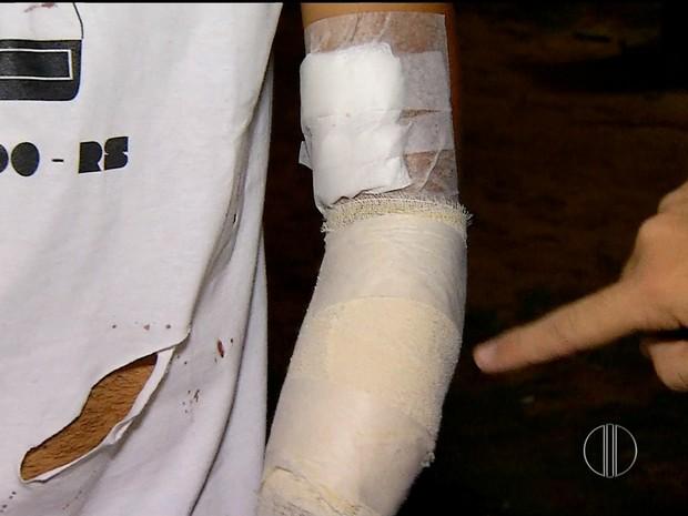 Fotógrafo foi alvo de tentativa de assalto na noite desta segunda-feira (22) no bairro do Alecrim, em Natal (Foto: Reprodução/Inter TV Cabugi)