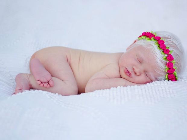 Luiza, criança albina Uberlândia (Foto: Bia Marquez / Divulgação)