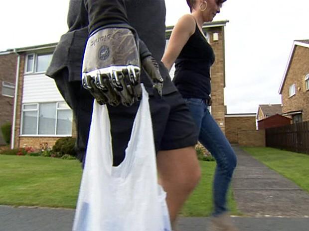 Braço biônico  (Foto: BBC)
