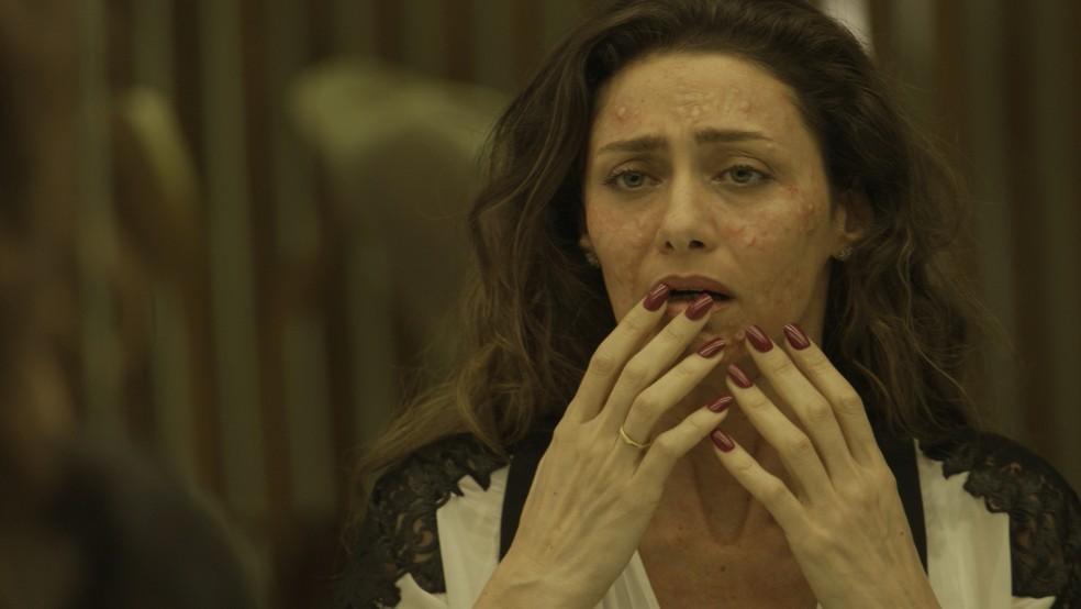 Joyce é surpreendida por uma alergia no rosto causada por um suco 'batizado' por Irene (Foto: TV Globo)