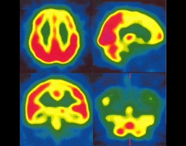 Diagnóstico de imagem mostra problema de irrigação sanguínea no cérebro da paciente (Foto: Nascimento et. al/BMJ)