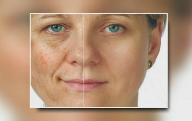 Dermatologista de Roraima fala sobre as manchas na pele (Foto: Bom Dia Amazônia)