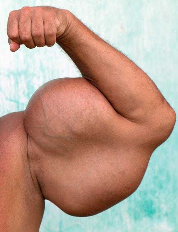 """Detalhe da imagem mostra bíceps de Arlindo """"Montanha"""", que injetou óleo mineral misturado a álcool e anestésico para aumentar o tamanho do seu braço (Foto: Maria Andrade/Barcroft Media/Other Images)"""