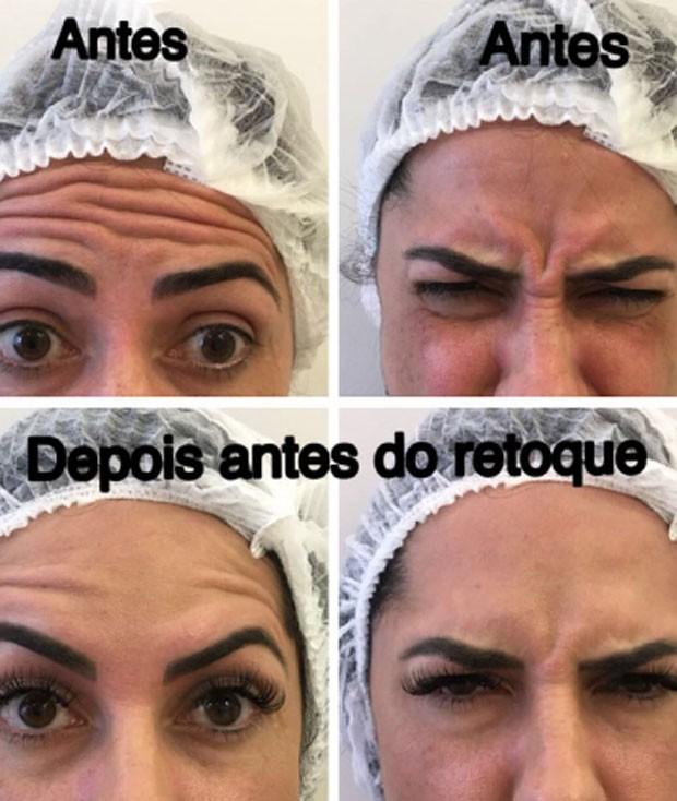 Graciele Lacerda mostra antes e depois (Foto: Reprodução)