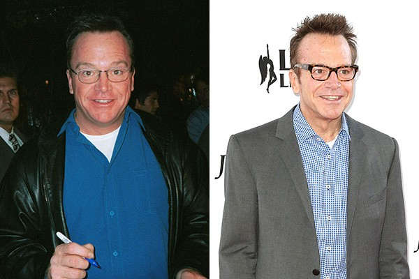 O ator Tom Arnold ficou diferente após afinar a silhueta. Ele emagreceu cerca de 40 quilos! (Foto: Getty Images)