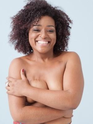 Eliane Canegal venceu o câncer após um longo tratamento (Foto: Faya/ Divulgação Topless in Rio)