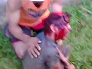 Garoto é atacado por cães em Rio Branco (Foto: Reprodução)