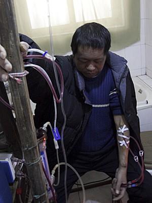 Chinês cria máquina caseira de hemodiálise (Foto: AP)