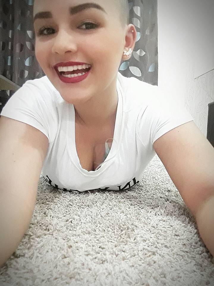 Rafaella perdeu os cabelos por causa do tratamento (Foto: Reprodução - Facebook)