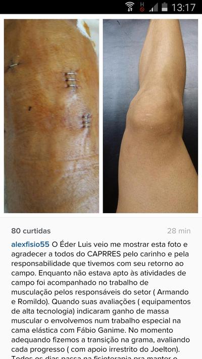 Perna Eder Luis Vasco (Foto: Reprodução Instagram)
