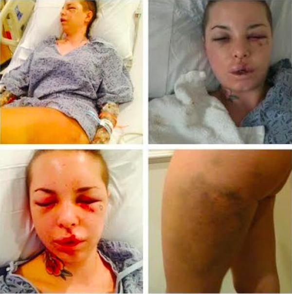 Os ferimentos de Christy Mack em decorrência dos ataques de Jonathan 'War Machine' Koppenhaver (Foto: Reprodução)