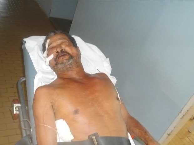 Idoso ficou com rosto desfigurado após agressão.  (Foto: Imagens/TV Oeste)