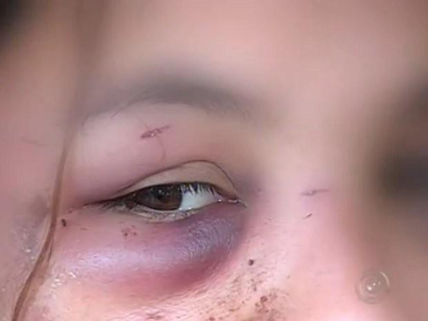 Mulher foi agredida com socos, pontapés, golpes de enxada e mordidas (Foto: Reprodução/TV TEM)