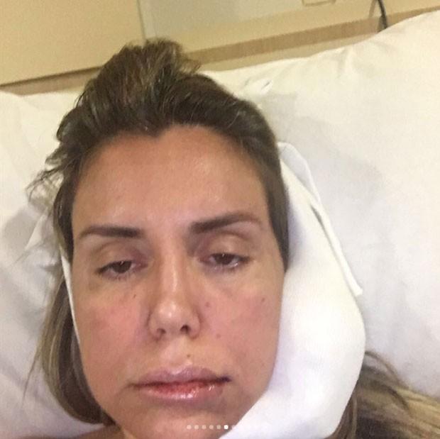 Renata Banhara com o rosto inchado durante tratamento (Foto: Reprodução/Instagram)