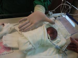 Ana Júlia cabia na palma da mão dos médicos (Foto: Arquivo pessoal)