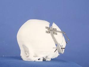 Molde de crânio feito com nylon 15 (Foto: Divulgação/Biofabris)