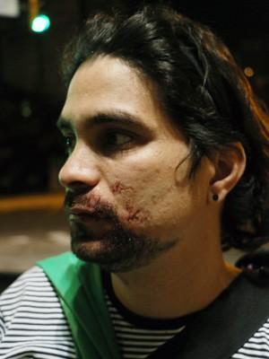 José Daniel Menezes diz ter sido espancado em Porto Alegre (Foto: Leo Urnauer/G1)