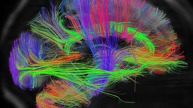 Um dos mitos mais conhecidos sobre o cérebro é de que usamos apenas 10% de sua capacidade (Foto: BBC)
