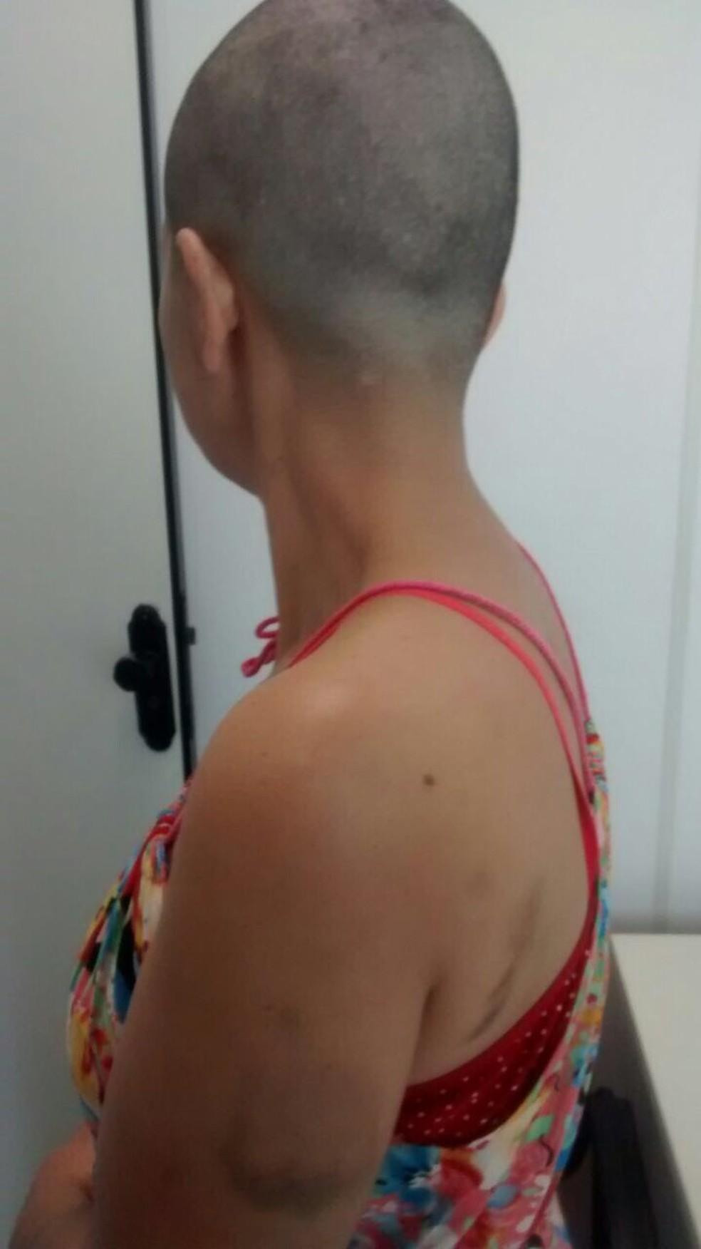 Mulher foi agredida e teve a cabeça raspada pelo companheiro em Bom Despacho (Foto: Polícia Civil/Divulgação)