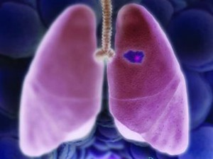 Câncer de pulmão pode ficar escondido por 20 anos, diz estudo (Foto:  Eric D. Smith, Dana-Farber Cancer Institute/Divulgação)