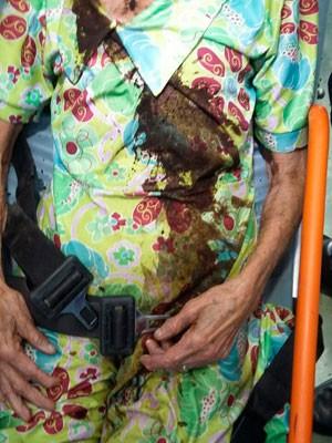 Idosa de 75 anos foi agredida com café quente pelo próprio filho na cidade Itamaraju, na Bahia (Foto: Sulbahianews)