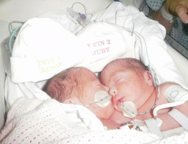 As gêmeas Rosie e Ruby Formosa (Foto: Cortesia Great Ormond Street)